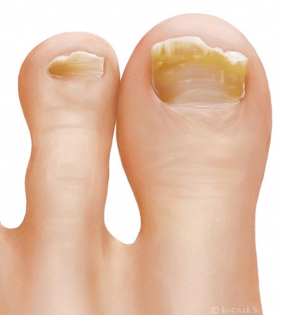 Der Nagel der falschen Form die Behandlung