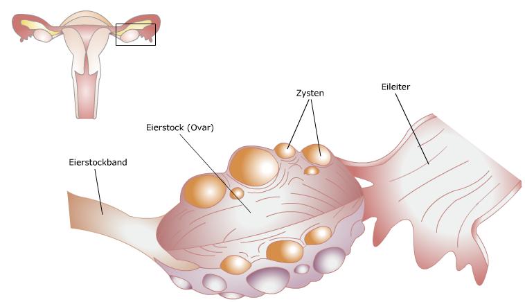 PharmaWiki - Polyzystisches Ovarialsyndrom (PCOS)