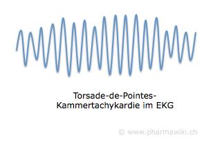 Paroxetine zydus 20 mg